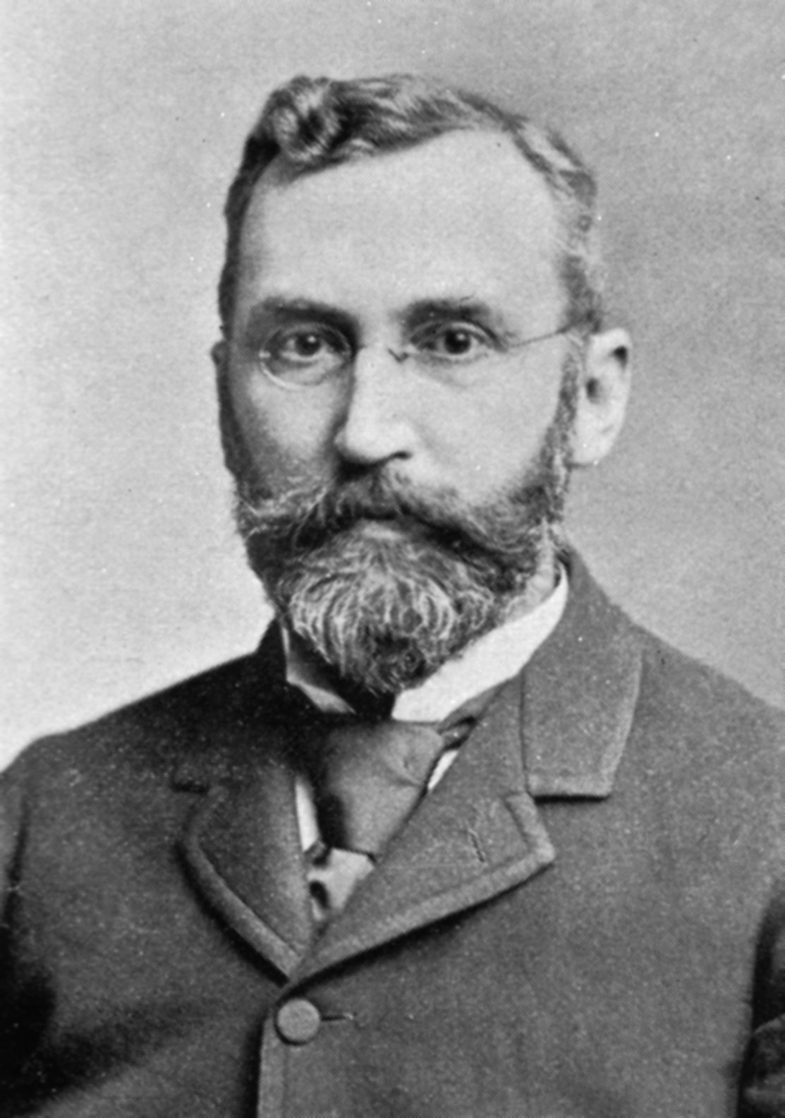 Dr. George M. Gould Edward Mordrake