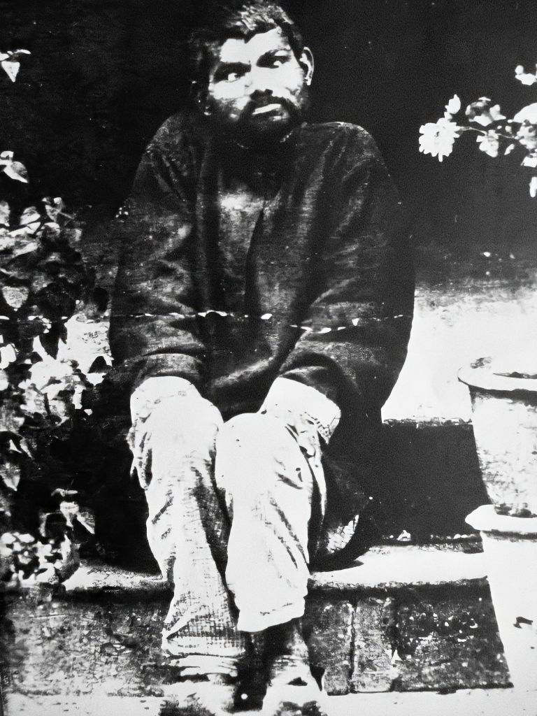 The wolf child Dina Sanichar, photographed in 1875, eight years after his discovery.