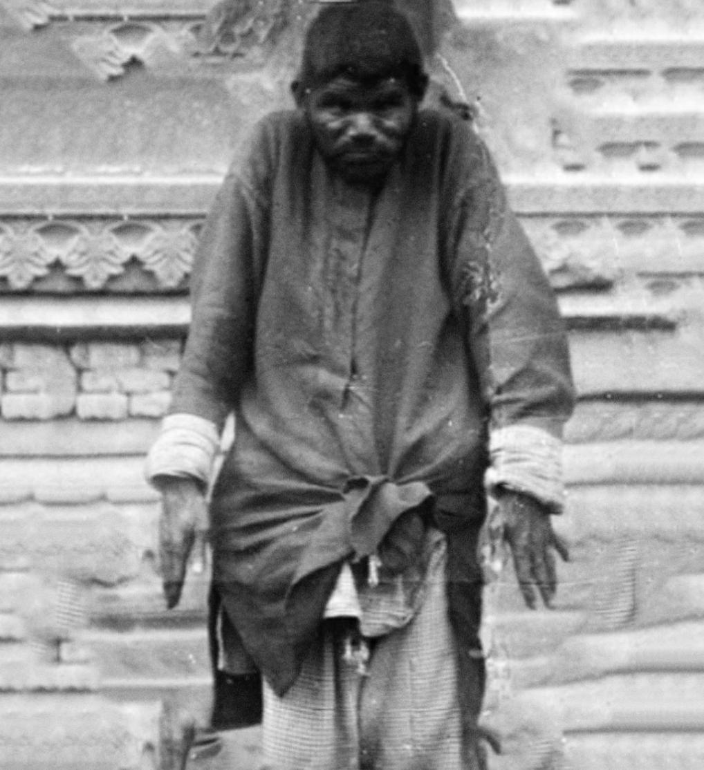 The wolf child Dina Sanichar, photographed in 1875