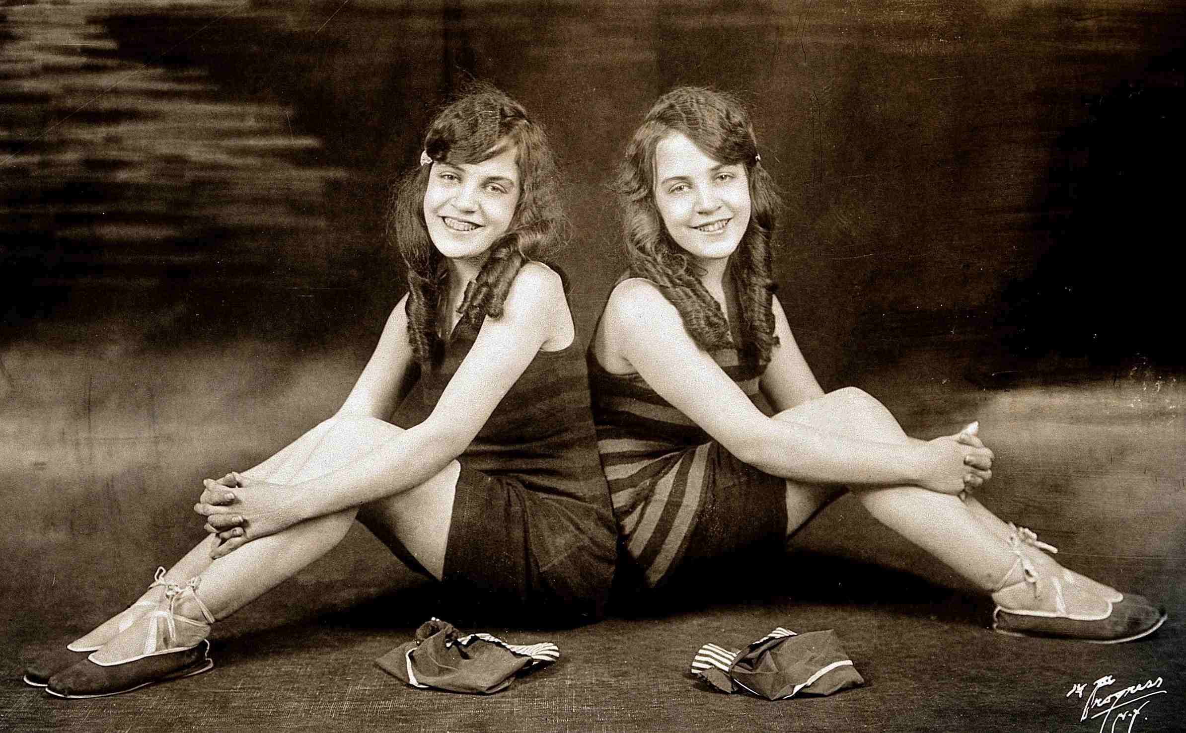 Daisy and Violet Hilton, conjoined twins