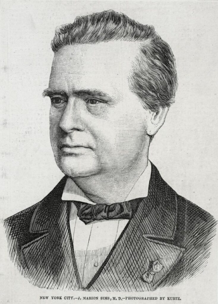 J. Marion Sims: The 'Father of Modern Gynecology'