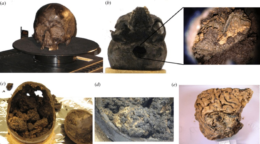 Heslington Brain: This strange ancient human brain was well-preserved for 2,600 years 5