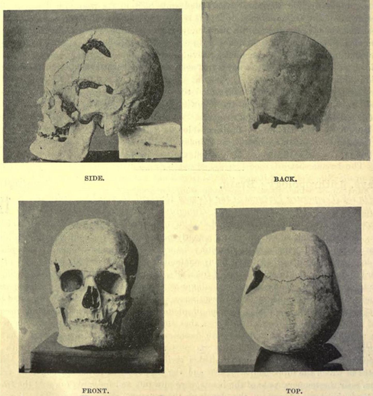 skull of ancient Egyptian pharaoh Sanakht