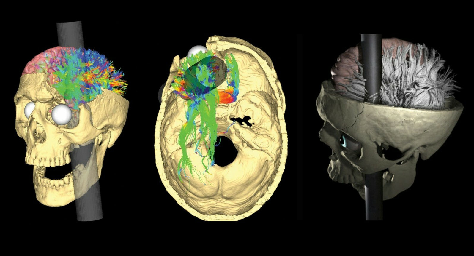 Images of the most recent reconstruction of the Phineas Gage case (2012). © Van Horn JD