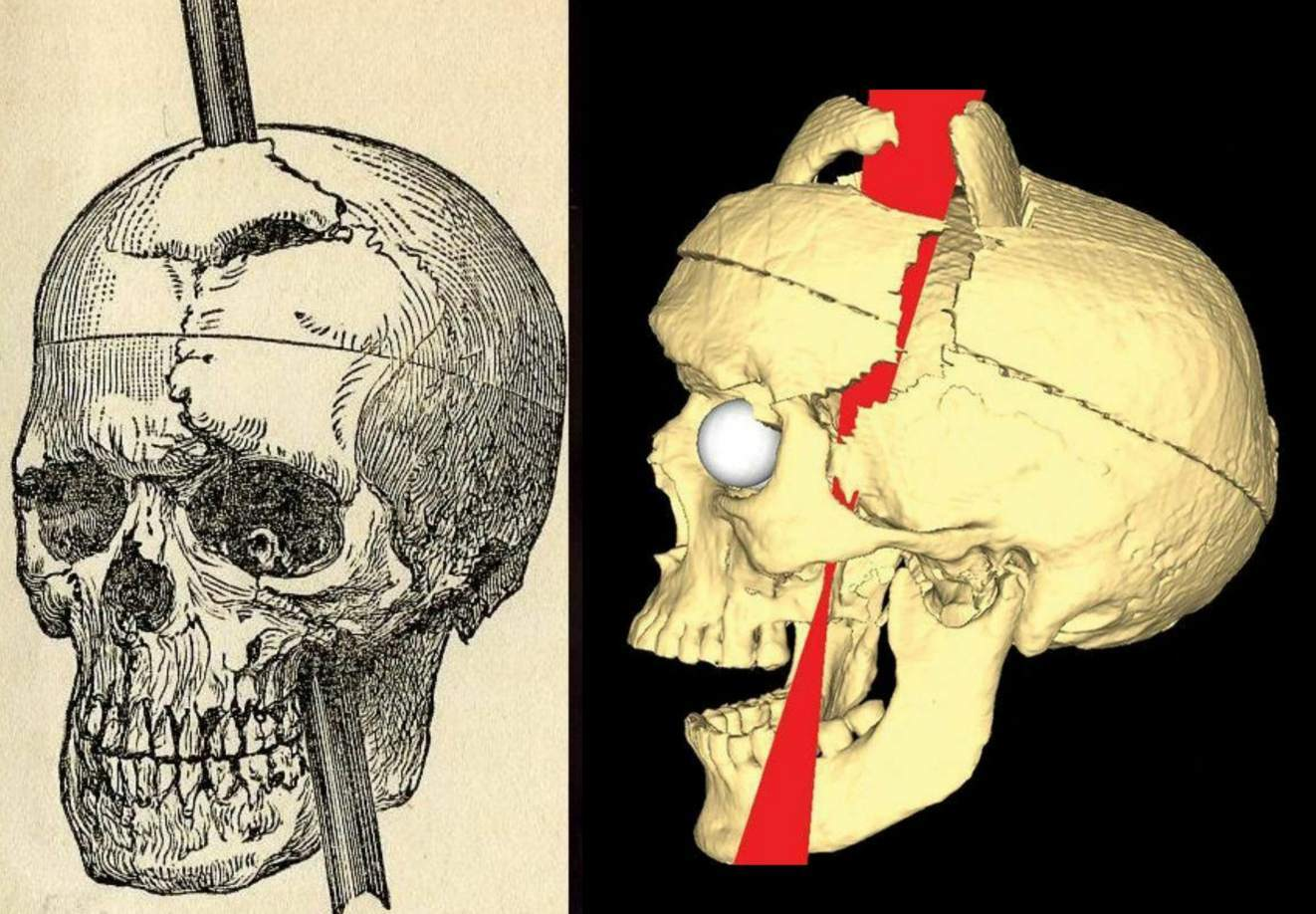 Reproduction image of the accident and photo of the skull: Initially, there were not a lot of notable side effects from the accident, but one thing that developed during his 12days of decline was an issue with half of his face. Behind the left eye, where the spike had passed, an infection began to grow. The eye began to bulge, and bits of infected brain and pus oozed from the socket. Phineasstopped being able to see from that eye, and it developedptosis, or a drooping of the eyelid.This ptosis would not go away for the remainder of his life. Thescars fromthe initial injury still remained, as well. In fact, many muscles in the left side of his face never fully recovered, leaving him with little movement on that side.