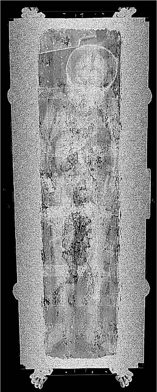Röntgenfoto van Rosalia Lombardo