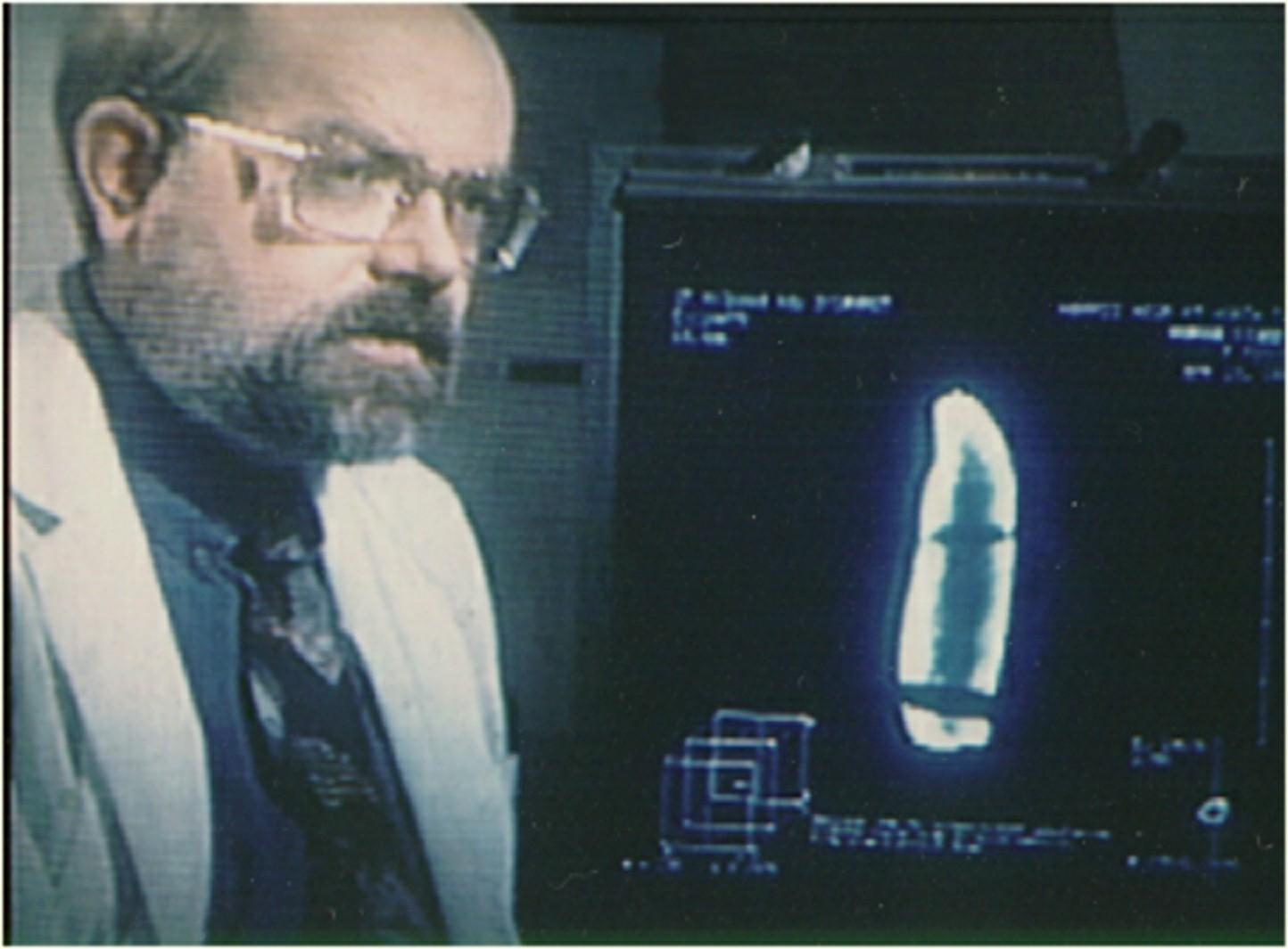 fossil finger, Medical Doctor Dale Peterson