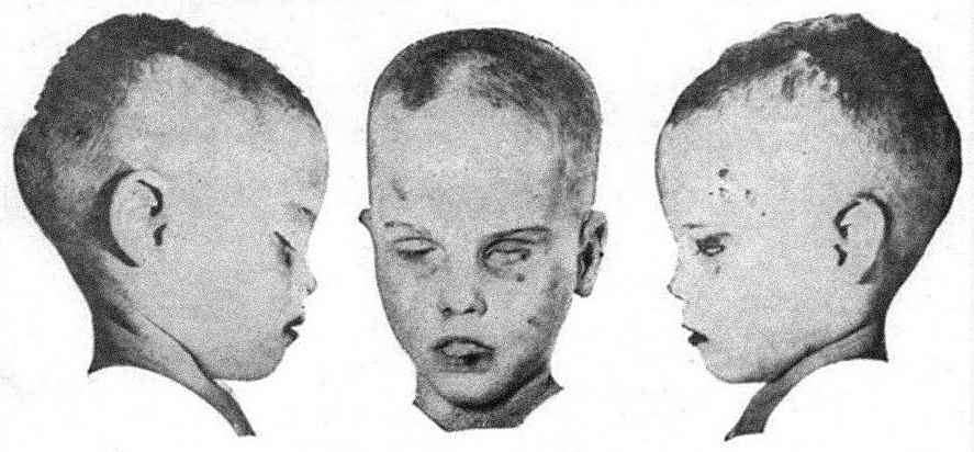 """Bruising, all up and down the body and face of the boy, was instantly noticeable. The hair had been """"crudely"""" cut with patches lying around the boy's nude body. His blue eyes were sunken into his skull and half-closed. His mouth rested partially open, and it looked as though he had been crying before death."""